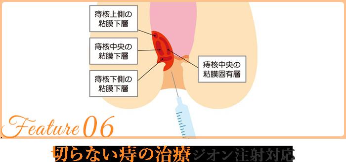 切らない痔の治療ジオン注射対応