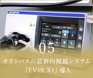 05オリンパスの最新内視鏡システム『EVIS X1』導入